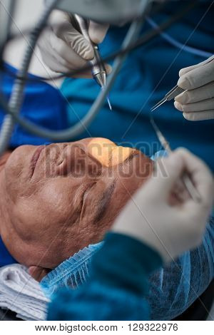 Close-up image of medical workers performing cataract surgery
