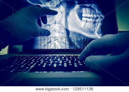 Doctor Examining Spine and Head X Ray Scan Images on His Laptop Computer. Medical Application for X-Ray Display and Examination. Radiology Theme.