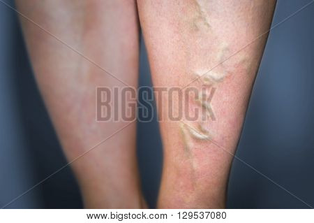 Thrombophlebitis In Human Leg