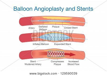 Balloon agioplasty and stents procedure for heart disease treatment. This illustration about medical.