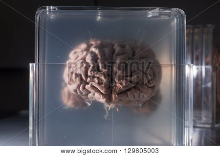 Brain samples preserved in plastic slides coronal section.