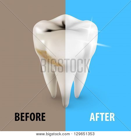 Teeth Whitening Icon Dentist Symbol in Isometric Style
