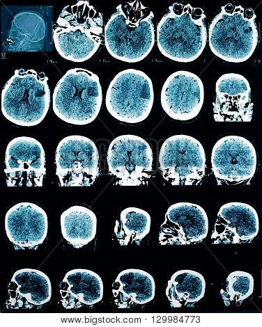 CT picture of human brain. Medical professional background