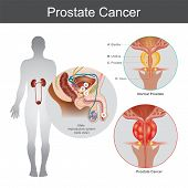 The Prostate Cancer Is The Most Common Cancer Among Men Not Skin Cancer. The Prostate Cancer That St poster