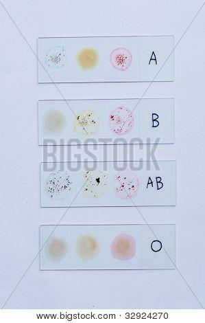 Blood group testing