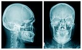 Skull X-ray Image In Blue Tone, X-ray Image Of Human Head On Black Background poster