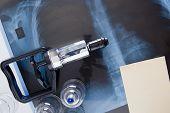 foto of vacuum pump  - Set for vacuum massage and treatment of respiratory disease - JPG
