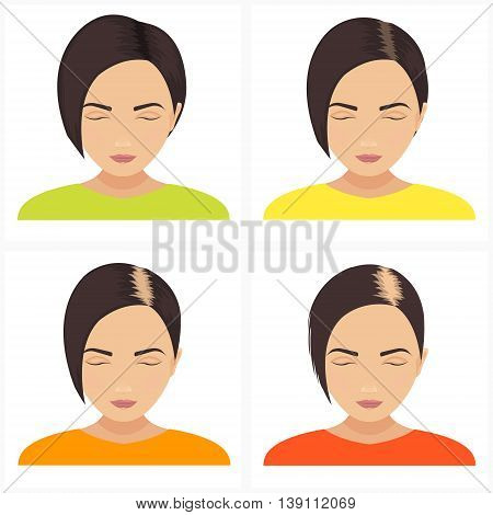 Female hair loss stages vector set. Female pattern baldness. Hair care concept.