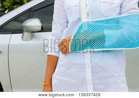 closeup woman in shirt with broken arm in the background of blurred gray car.