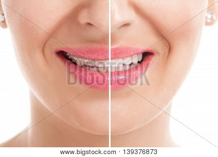 Teeth with braces before and after, health concept