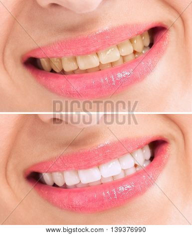 Before And After Whitening Treatment Teeth