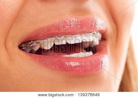 dental fix prosthesis close up, health concept