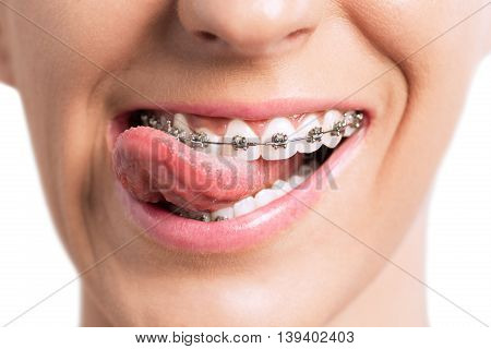 Smiling Mouth With Tongue And Braces