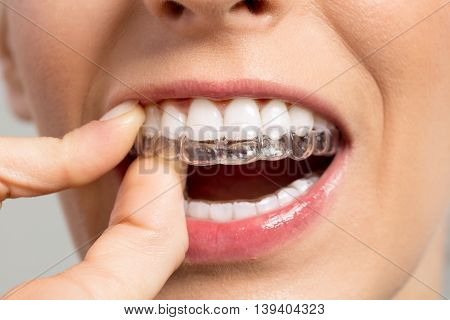 Women holding Invisible braces, dentist close up