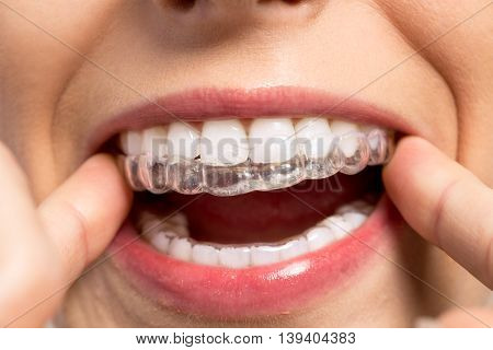 Wearing orthodontic silicone trainer, dentist close up