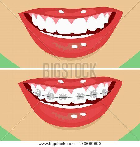 dental braces, before and after. Close up illustration