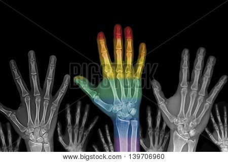 Radiography of hands and one of them claims the gay rights or the difference of ideas
