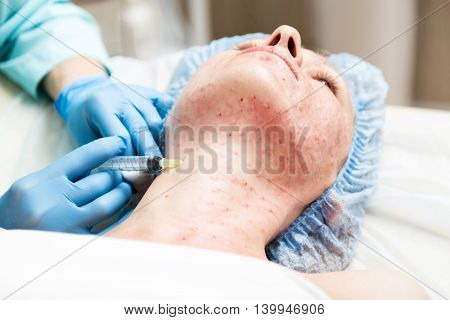Beautician makes biorevitalization to young woman. The cosmetic procedures for the face. Beauty treatments in the spa salon. Facial Skin Care.