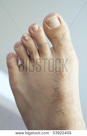 Cracked Fungus Toenails