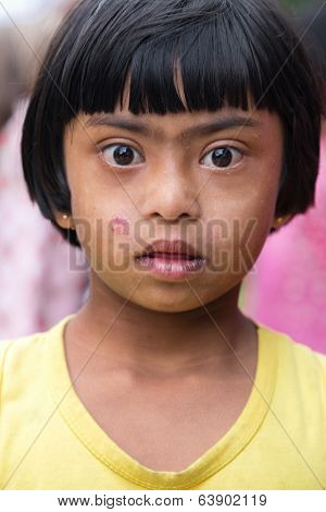 ELLA, SRI LANKA - MARCH 2, 2014: Portrait of Sri Lankan girl with Down Syndrome. 24.000 cases of Down Syndrome have been registered in Sri Lanka.