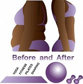 image of cellulite  - Woman - JPG