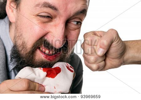 Man´s Fist Slapping A Bloody Mouth