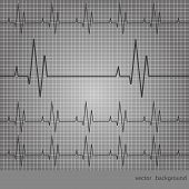pic of ecg chart  - ECG tracing chart on a gray background - JPG