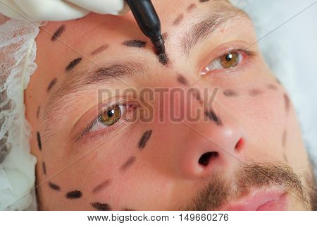 Closeup young mans face preparing for cosmetic surgery, getting lines drawn on skin with black marker, as seen from above.