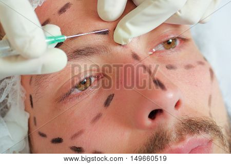 Closeup young mans face, black lines drawn around it, receiving facial cosmetic treatment injections, doctors hand with glove holding syringe.