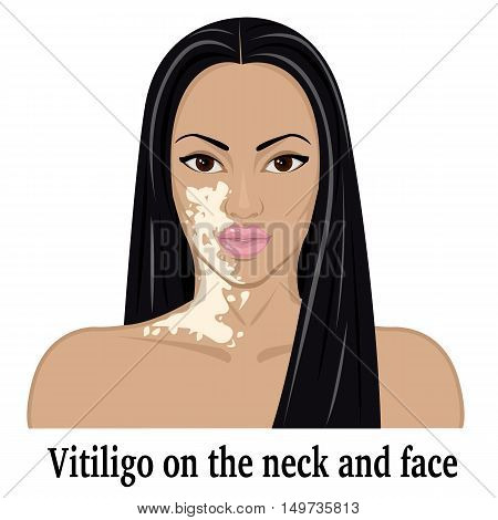 The girl with the symptoms of vitiligo on the face and neck