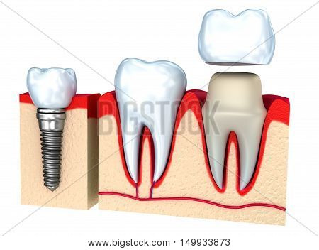 Dental crown installation process isolated on white