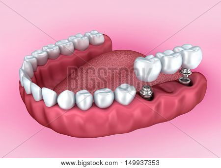 Lower teeth and dental implant isolated on white . Medically accurate 3D illustration