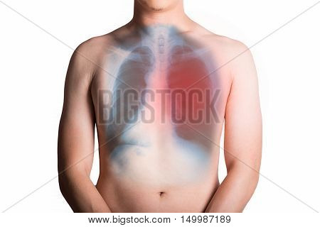 Man and an x-ray with lung isolated on white background.