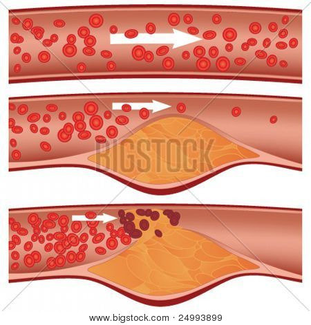 Cholesterol plaque in artery (atherosclerosis) illustration. Top artery is healthy. Middle & bottom arteries show plaque formation, rupturing, clotting & blood flow occlusion.