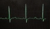 Photo Of Normal Human Electrocardiogram On A Close-up Monitor. Ecg Texture. poster