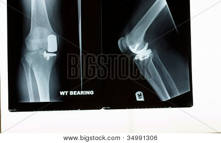 An X-ray Of A Knee Replacement