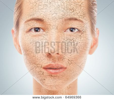 Portrait Of Young Woman With Dry Skin