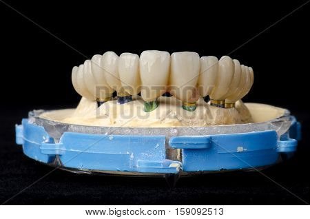 Monolithic Zirconia Restorations Full Arch Implant