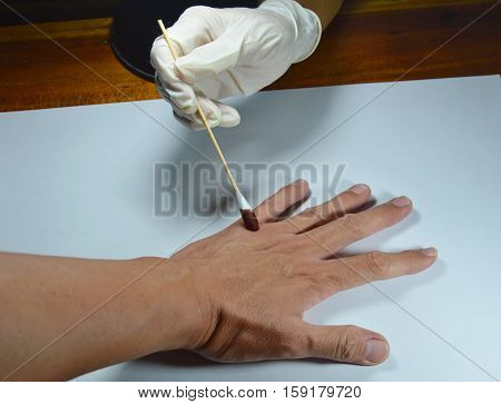 hand in medical rubber glove apply some remedy to the wound