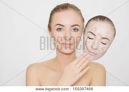 put away bad sking with pimples from face