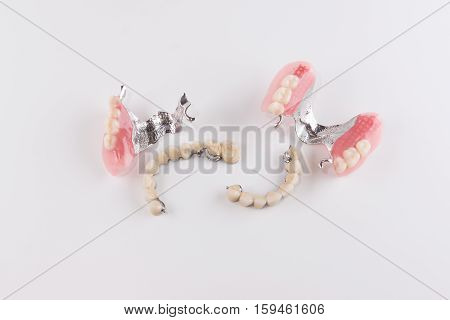 Clasp prosthesis with and attachments fixing ceramic crowns