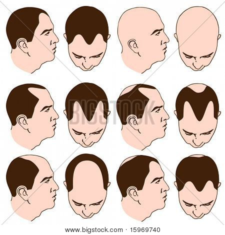 An image of man with various receding hairlines.