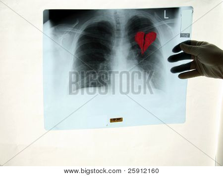 a x-ray shows a Broken Heart