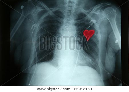 a x-ray shows before a Broken Heart