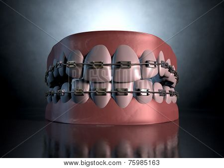 Creepy Teeth With Braces