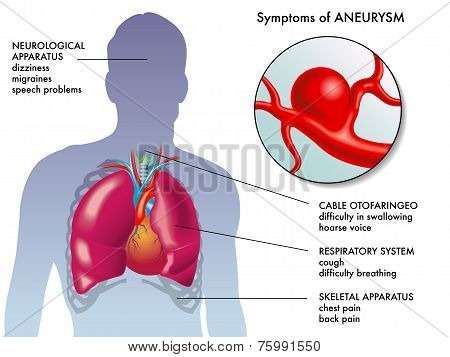 aneurysm symptoms