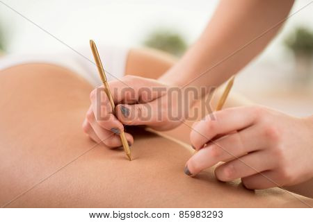 Using Acupuncture To Reduce Cellulite