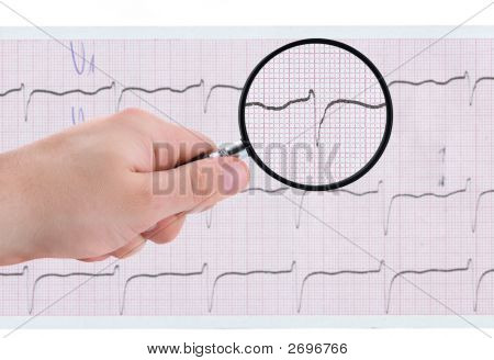 Closer Look At Ecg Printout