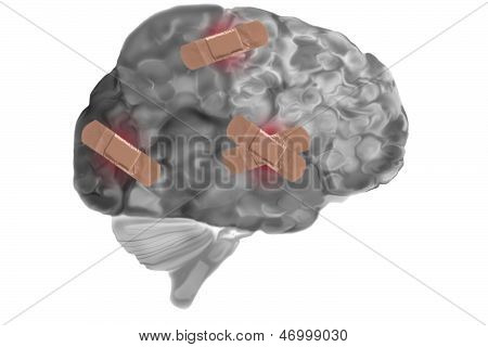 Bandages On Damaged Brain