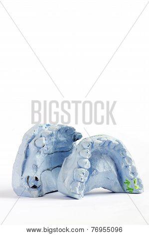 plaster cast of teeth
